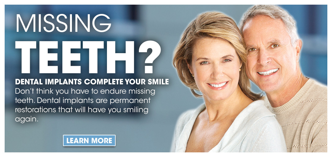 Dental Implants Clinton MS