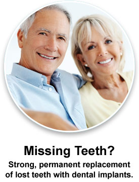 Dental Implants Dentists Clinton MS
