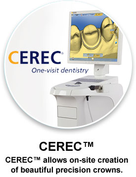 CEREC One Visit Dental Crowns Dentist Clinton MS
