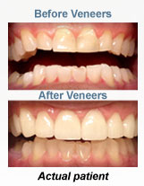 Dental Veneers Dentist Clinton MS